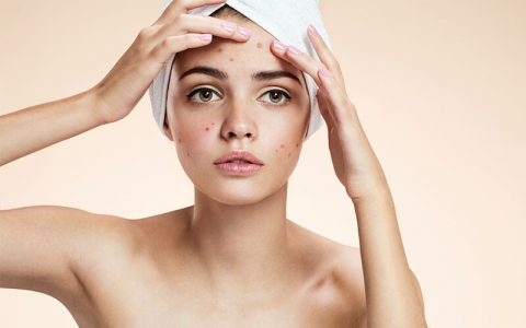 Acne Causes and Treatment Option to know - Generic Villa